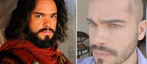 Sidney Sampaio, antes e depois: procedimento realizado com sucesso