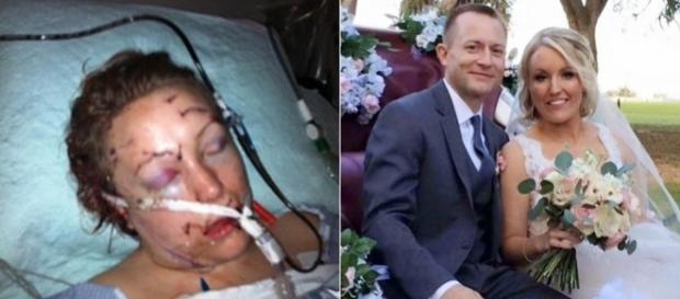 Femeia înjunghiată de 32 de ori de către un partener abuziv, a trăit cel mai important moment din viața sa - Foto: CBS News/Facebook