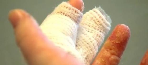 Girl making homemade slime gets burned, warns others | WJLA - wjla.com