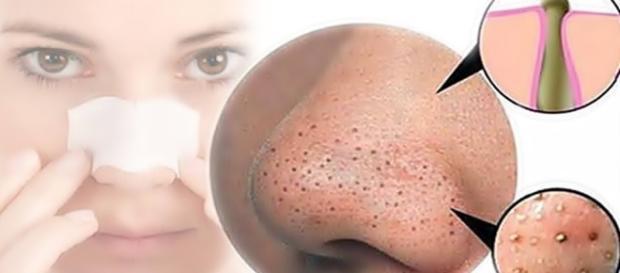 Máscara caseira para retirar cravos em pouco tempo