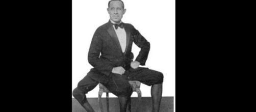 Así fue la historia del hombre que nació con tres piernas (FOTOS) - peru.com