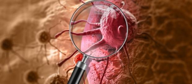 Entdeckt: Medikament gegen Schuppenflechte reduziert das Krebswachstum - heilpraxisnet.de