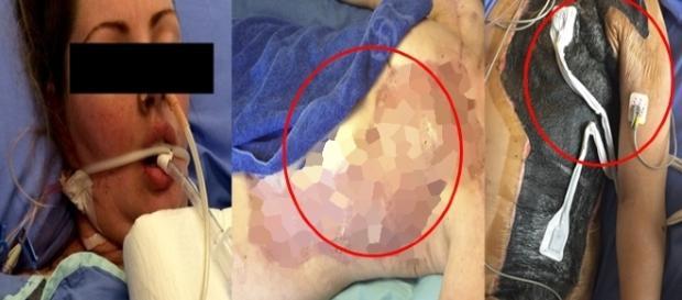 Lesley no hospital, após sofrer com uma bacteria mortal
