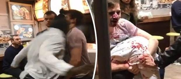Homem agride vítima com violenta cabeçada no rosto (Daily Star via DEADLINE)