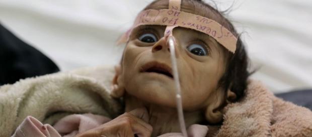 a terrível realidade dos bebês no Yemen