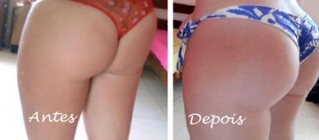 Imagem do bumbum, antes e depois dos exercícios.
