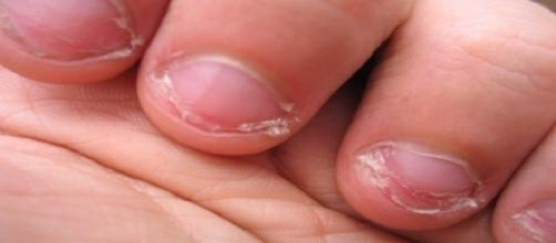 Roer unhas pode trazer sérios riscos para a saúde de quem tem esse hábito