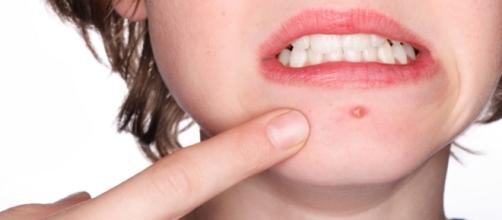 Tratamento com chás naturais contra a acne