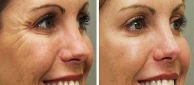 Mudança de hábitos pode tornar sua pele mais jovem (Foto: Reprodução)