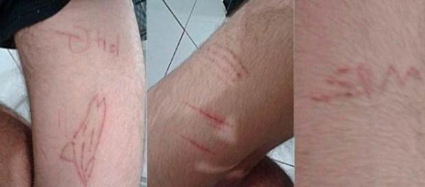 As vítimas do jogo da Baleia Azul se multiplicam em todo Brasil.