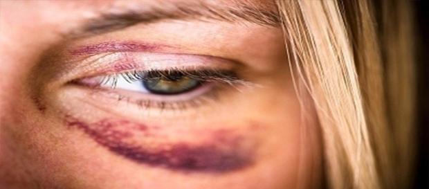 Mulher é vítima de agressão por parte do marido
