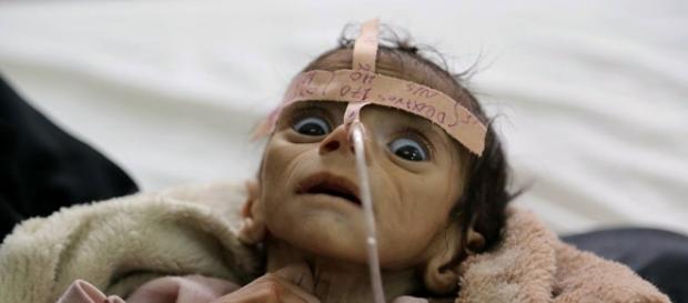 Yémen: un enfant mort de faim, symbole de l'indifférence générale - sputniknews.com