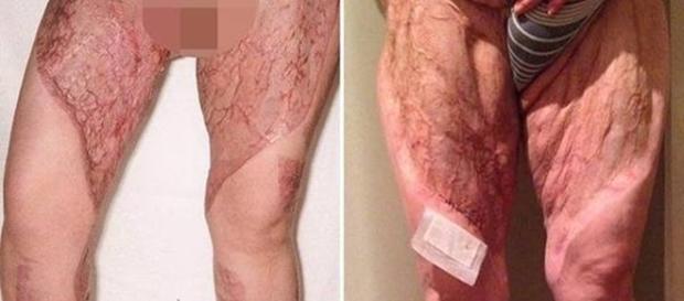 Imagens de como ficaram as pernas da mulher