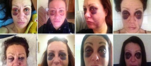 Mulher registra os abusos do ex-namorado