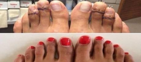 La chirurgie Cendrillon pour raccourcir les pieds devient très tendance aux Etats-Unis