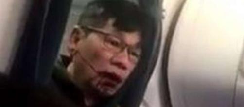 United passenger David Dao breaks silence, saying he's still in ... - scmp.com