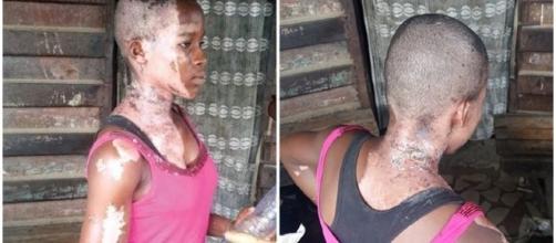 Victória Emmanuel sofreu várias queimaduras pelo coprpo