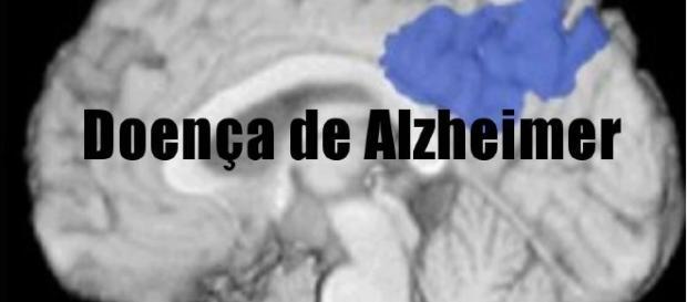 Doença de alzheimer não tem cura.