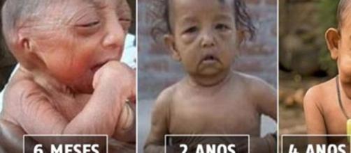 """Com apenas quatro anos, este garotinho de Bangladesh foi apelidado de """"Benjamin Button"""" (Foto: Google)"""