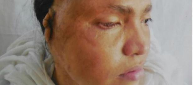 Kavita Baruni ficou desfigurada após o ataque