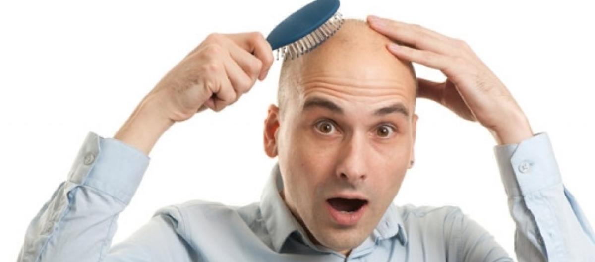 Calvizie e capelli grigi a33b6a625935