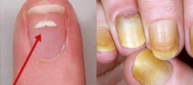 Manchas ou amarelamento das unhas podem indicar problemas de saúde