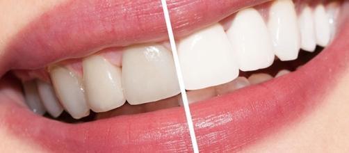 É possível obter dentes mais brancos com produtos naturais