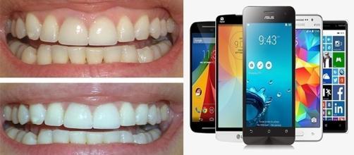 Luzes azuis do celular podem ajudar no clareamento dos dentes