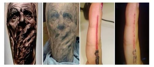 Mudanças que algumas tatuagens sofrem