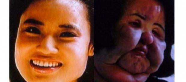 Ela injetou óleo de cozinha no rosto