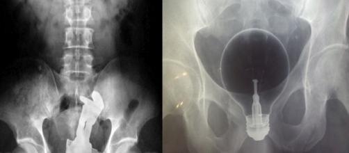 Objetos estranhos encontrados em raio-X