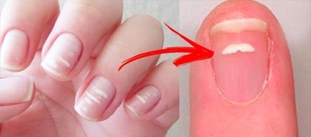 Fique atento às manchas brancas nas unhas