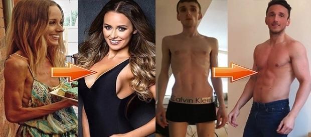 Casos de pessoas que venceram a anorexia