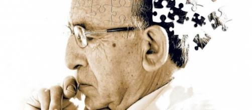 Dementia and Alzheimer's disease overtake heart disease as the ... - planetfreewill.com