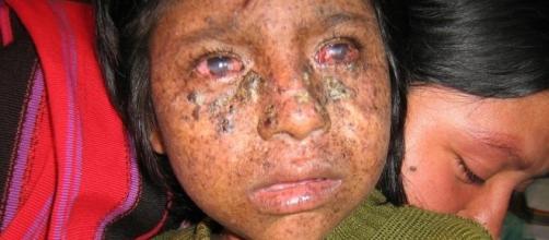 Xeroderma Pigmentosum, ou Síndrome do Vampiro.