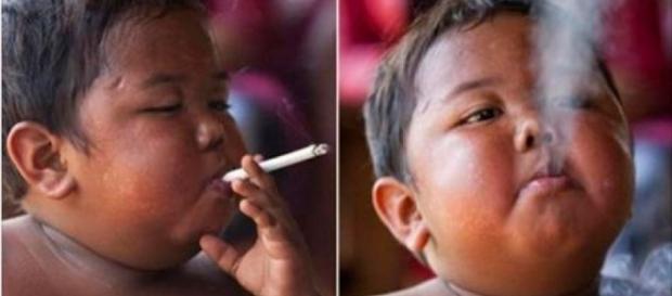 Lembra do menino que fumava 40 cigarros por dia? Veja como está hoje