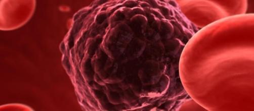 Entenda o câncer e algumas sintomas da doença