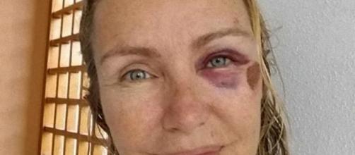 """Licia Colò, l'occhio nero: """"Sono scivolata sullo skateboard di mia figlia"""""""