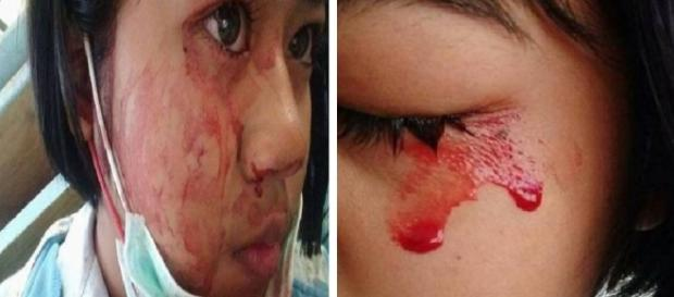 Conheça a menina que chora sangue - Google