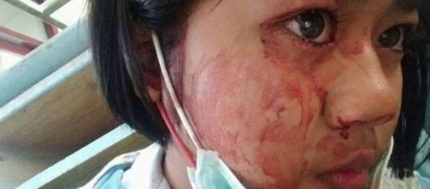 Garota que transpira sangue busca ajuda.