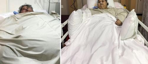 Un lento percorso verso la 'normalità', Emam non è più la donna più grassa del mondo, ha perso 300 chili in India. Foto: arabnews.com.