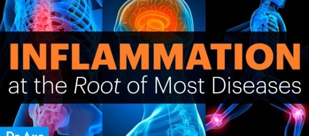 Inflammation at the Root of Most Diseases - DrAxe.com - draxe.com