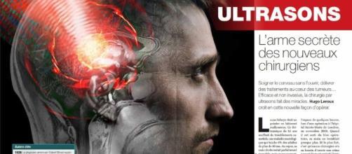 Ultrasons : l'arme secrète des nouveaux chirurgiens - Science-et ... - science-et-vie.com
