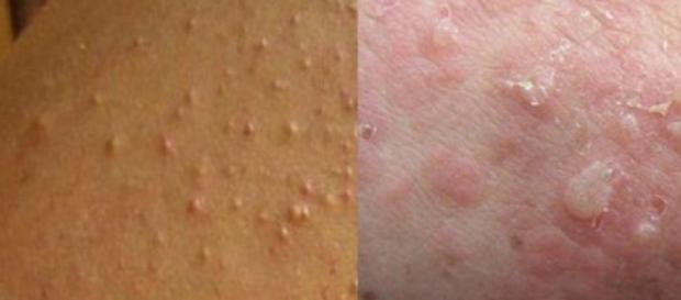 Alergia pode ser sinal de intolerância ao glúten