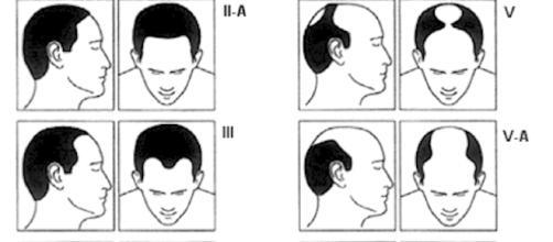 Tabela Norwood mostra o padrão da calvície masculina