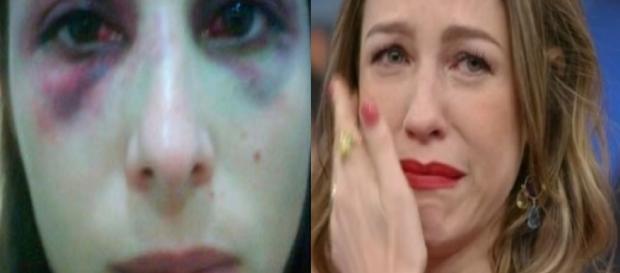 Luana Piovani tem ex-namorado preso por agressão a Aída Nunes (à esquerda) - Google