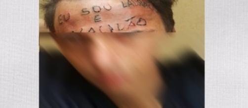 """O jovem teve a testa tatuada com a frase """"Eu sou ladrão e vacilão"""""""