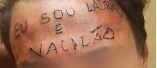 Jovem tem frase questionável tatuada na testa