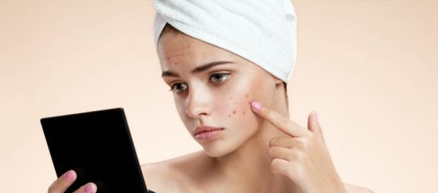 How To Get Rid Of Pimples (Acne) Overnight Fast - stylecraze.com