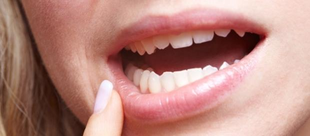 Simple Home Remedies To Treat Mucocele | Great Life and more… - greatlifeandmore.com